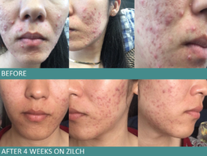before and after taking zilch acne formula by dr vivian tam